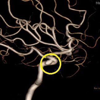 脳動脈瘤に対するコイル塞栓術 術前