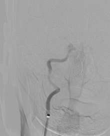 治療前造影で右内頸動脈の完全閉塞を認める
