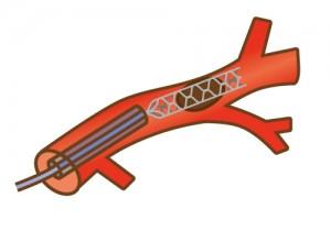 血栓回収療法:ステント型