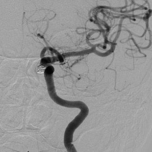 脳動脈瘤に対するコイル塞栓術 術後