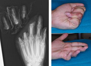 左写真:左中・環・小指完全切断 右写真:術後2年