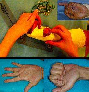 上写真:専門のハンドセラピスト(作業療法士)の指導のもと、リハビリを行っているところです。(右上:左環指屈筋腱損傷) 下写真:術後1年、正常まで回復